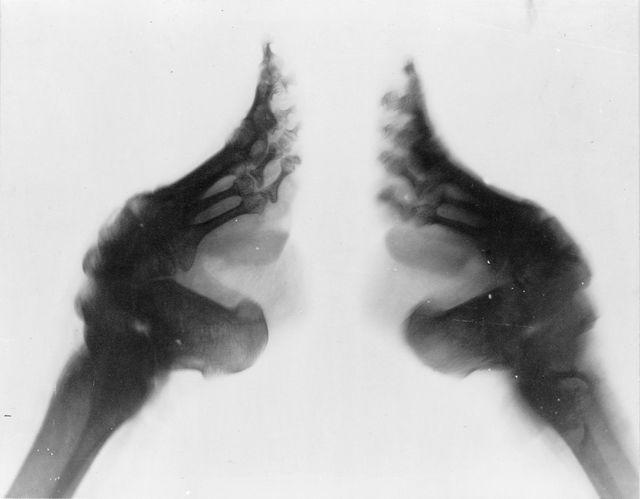 gołe kostki stopy